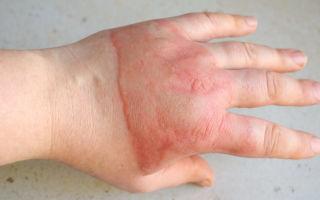 Уход за ранами и ожоговыми рубцами — о чем нужно помнить?