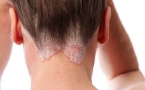 Ожог кожи головы после краски для волос, как оказать помощь