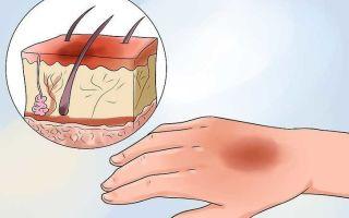 Ожоги первой степени: как оказать помощь