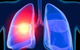 Первая помощь при ожоге дыхательных путей