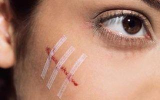 Шрамы и рубцы на лице от ожогов, способы устранения недуга
