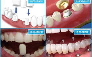 Протезирование — виниры, протезные коронки, мосты и зубные протезы.