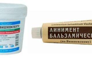 Можно ли использовать мазь Вишневского при ожогах