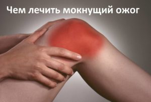 мокнущая рана после ожога чем лечить