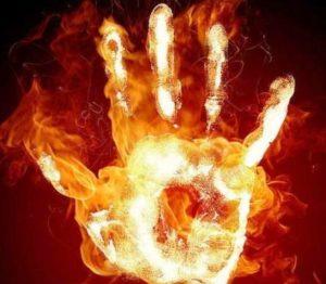 что делать при ожоге огнем на руке